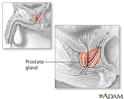Transurethral Resection of the Prostate (TURP) - Series