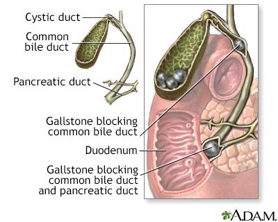 Gallstones And Gallbladder Disease