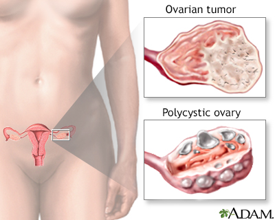Overproductive ovaries