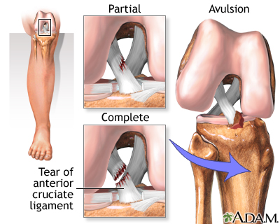 Extent of tear in the ACL