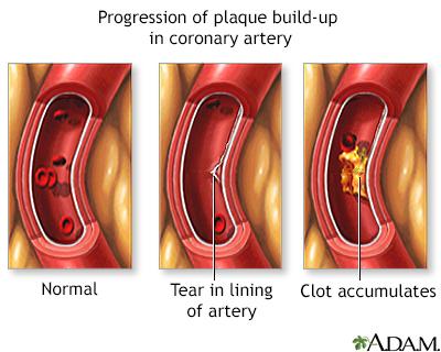 Progressive build-up of plaque in coronary artery