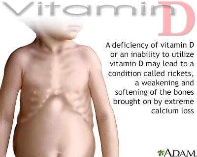 Vitamin D deficit