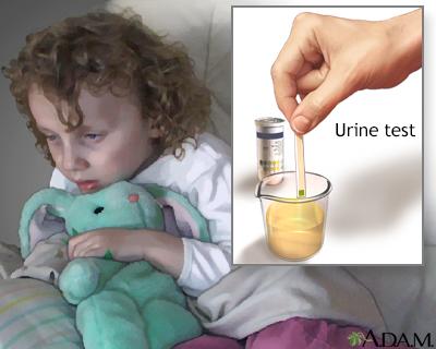 Urine test for Ketoacidosis