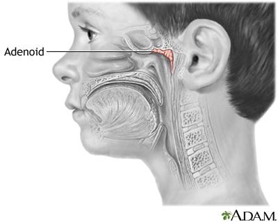 The message Adult sore throat and adenoids