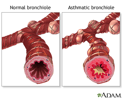 Normal versus asthmatic bronchiole