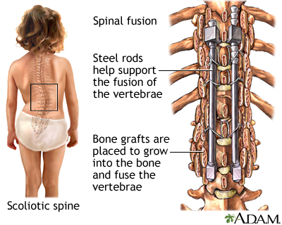 sexual positions lumbar fusion