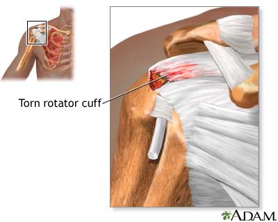 Torn rotator cuff