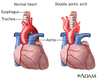 Double aortic arch