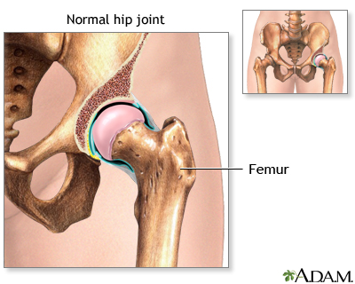 Hip joint replacement - Series