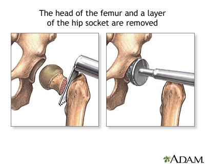 Как сделать операцию на тазобедренном суставе 161