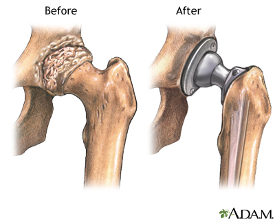 Hip Joint Replacement Series