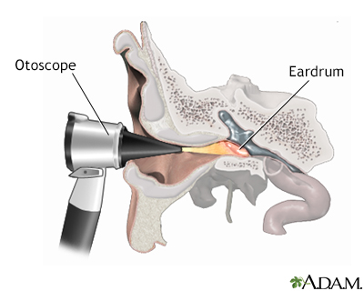 Otoscope examination