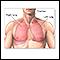 Pulmonary lobectomy - series - Normal anatomy